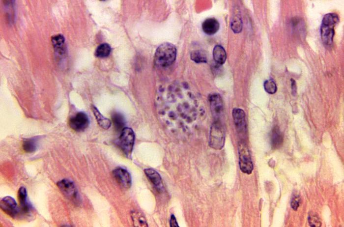 AHA Issues Scientific Statement on Managing Chagas Cardiomyopathy
