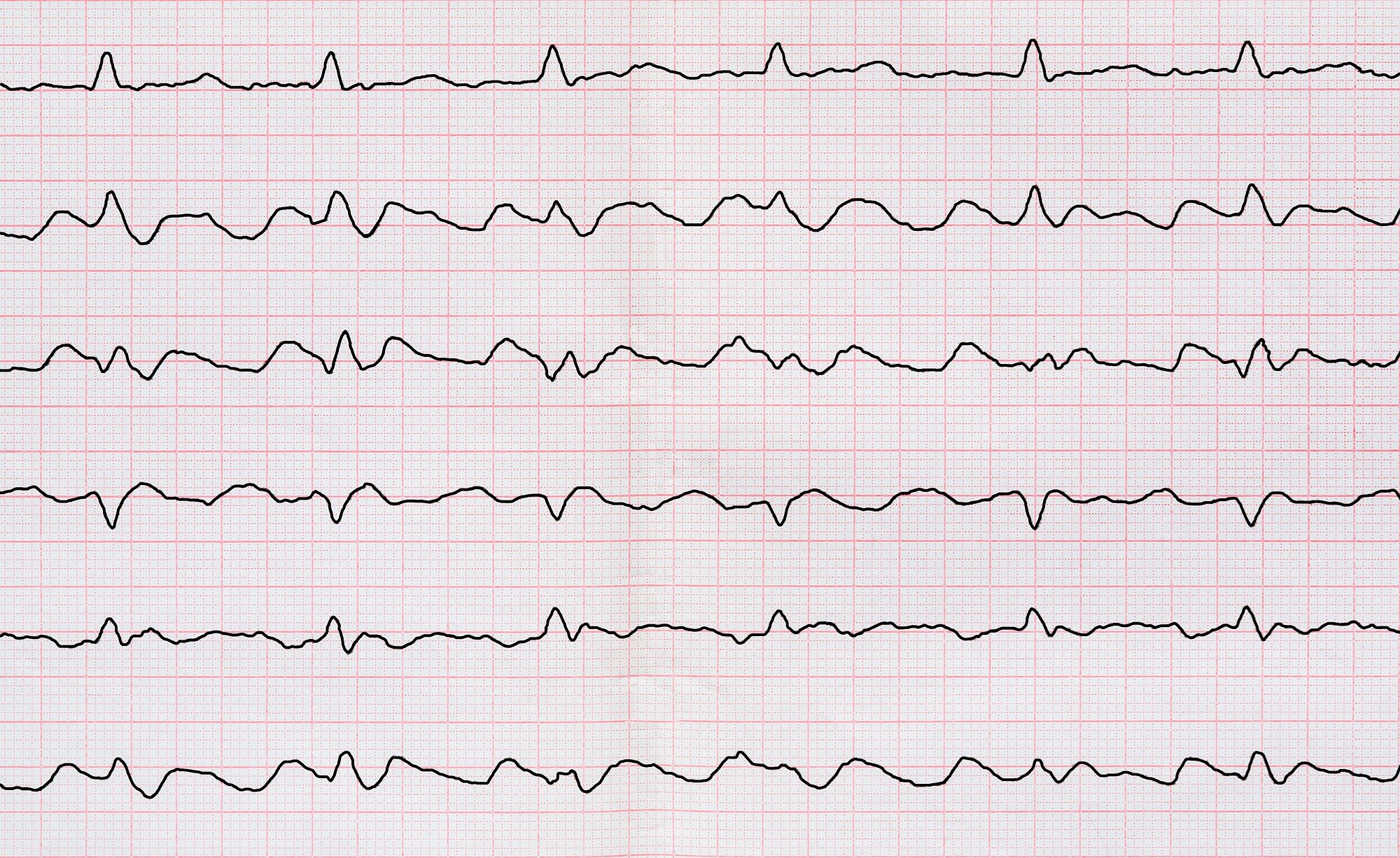 CHA2DS2-VASc Scores Drive Clinical Outcomes in Atrial Fibrillation, Flutter