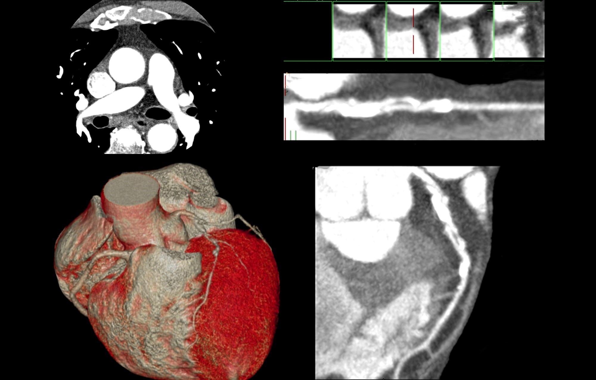 Coronary CTA Superior to Standard Care in Stable Chest Pain