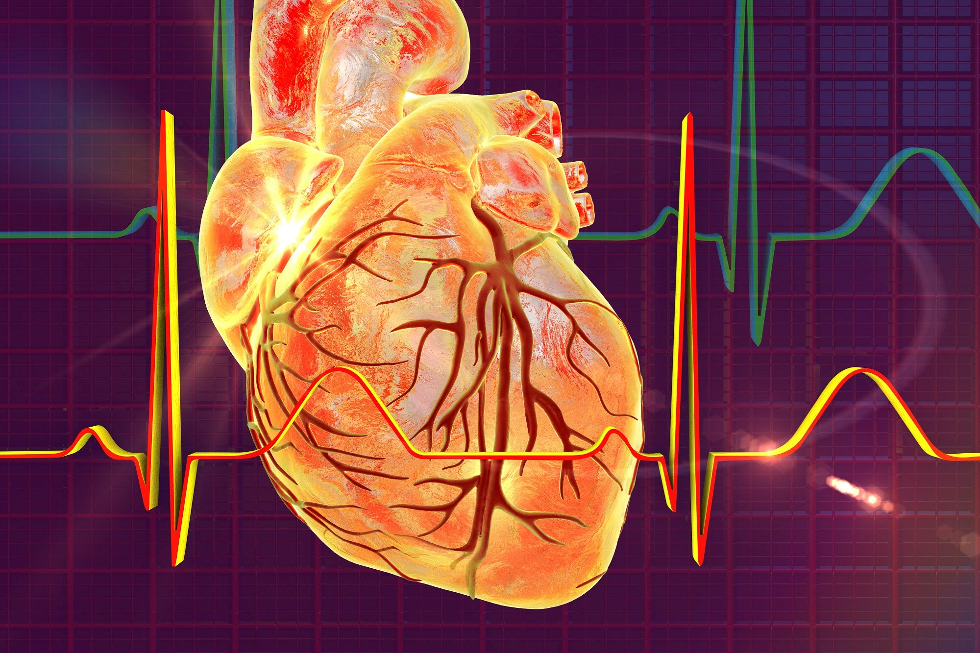 When Bipolar Disorder Presents, Consider Cardiovascular Comorbidities