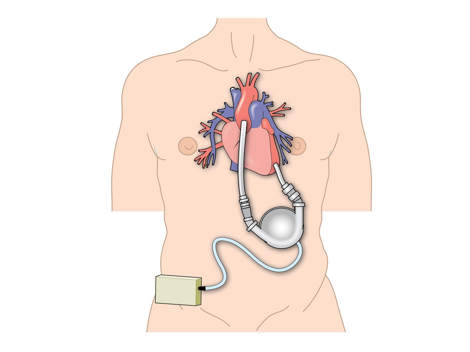 LVAD in Heart Failure Linked to Improved Glycemic Control