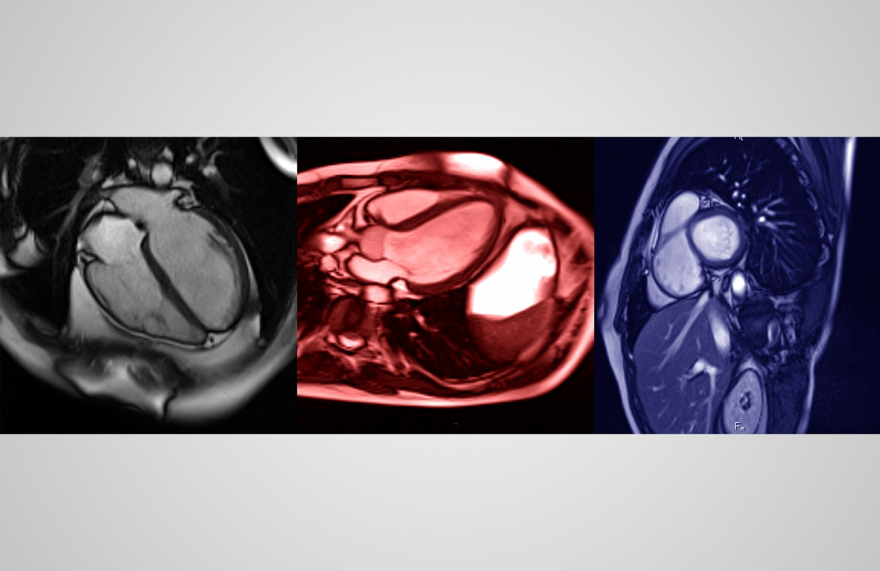 Rapid Cardiac Magnetic Resonance With Contrast Feasible in Developing World
