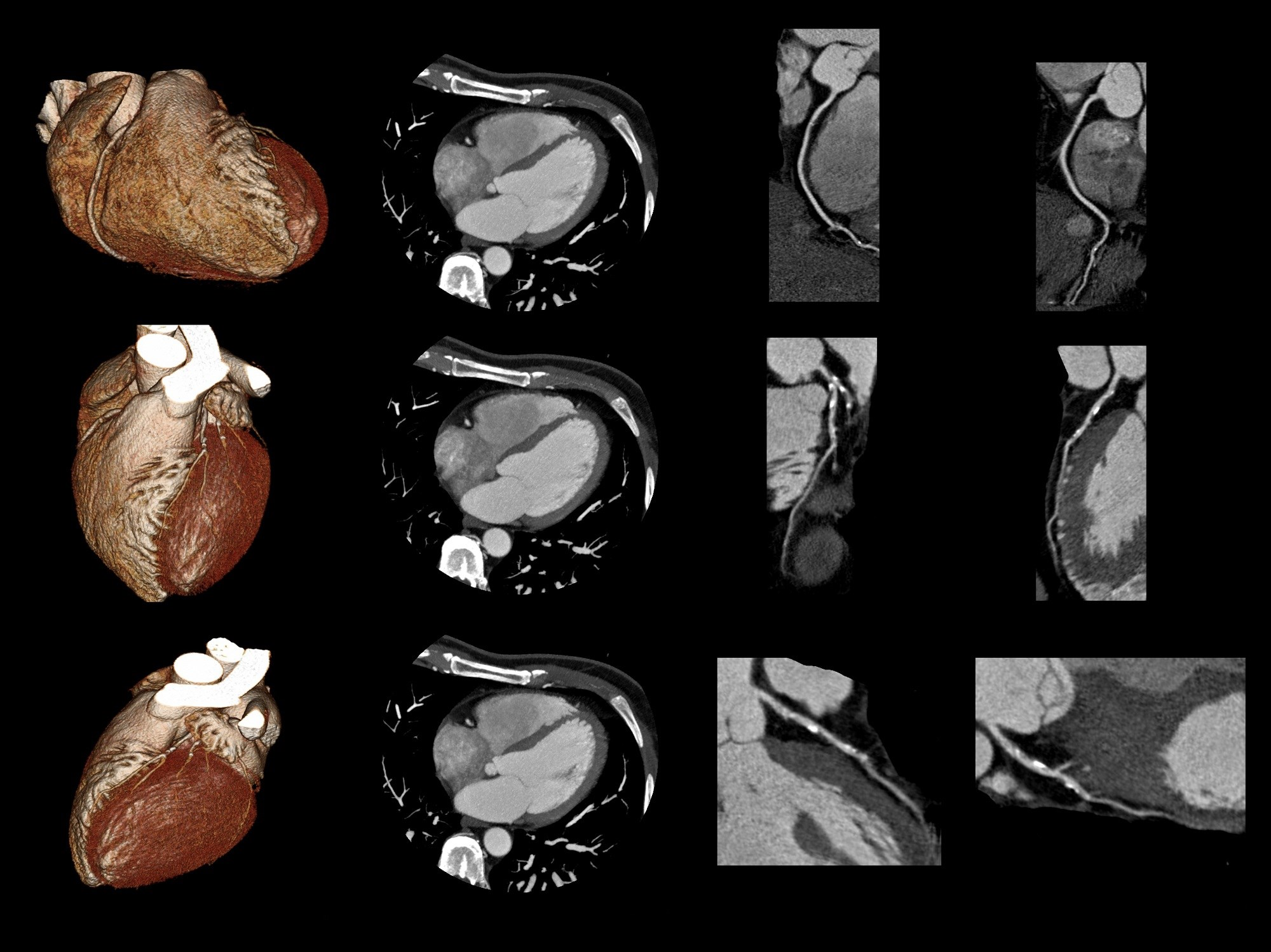 High perivascular fat attenuation index values are important markers of increased cardiac mortality.