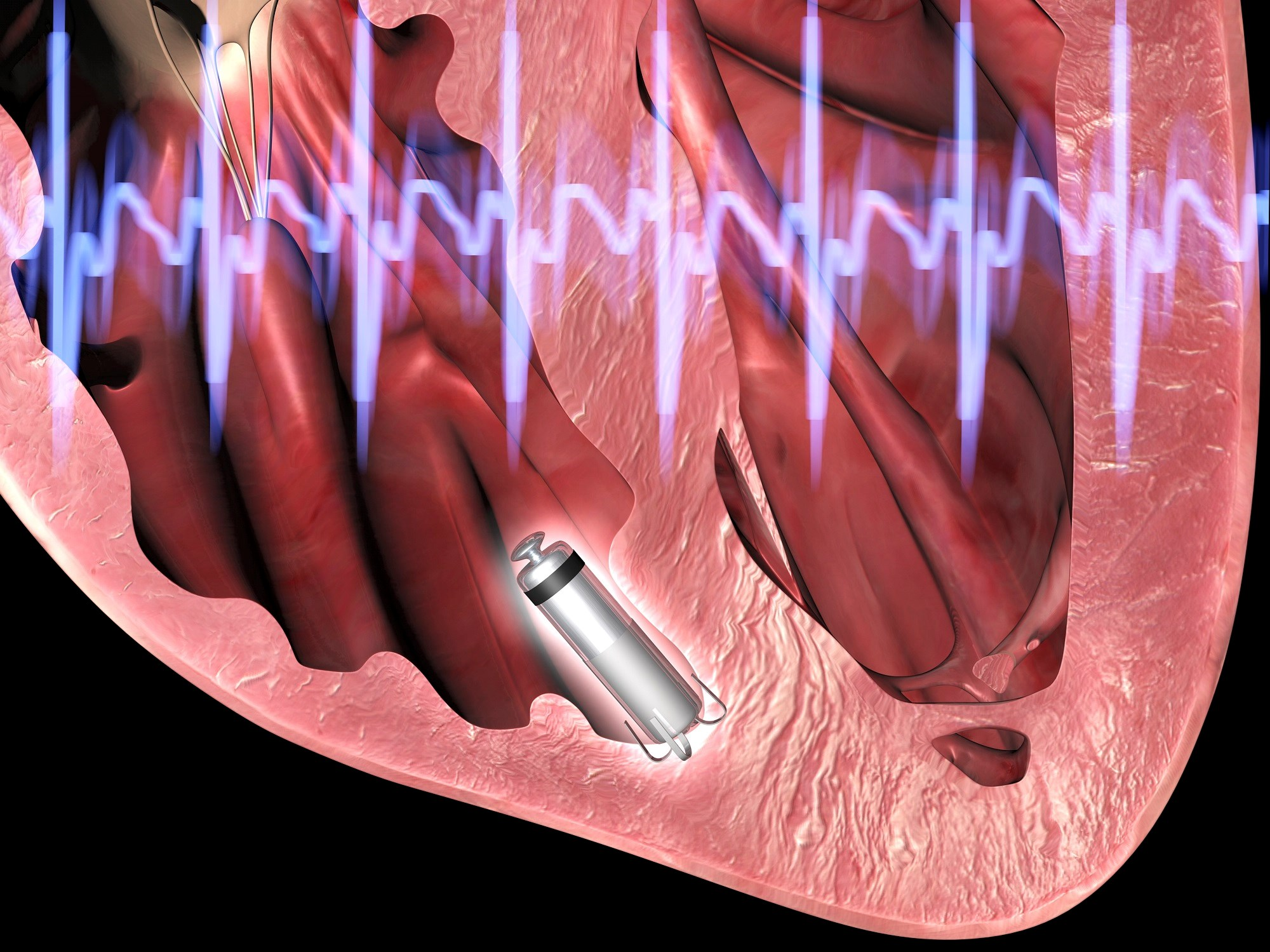 Although the results thus far are encouraging, the long-term comparative effects of leadless pacemakers will not be elucidated for at least a decade. <i>Photo Credit: Alfred Pasieka/Science Source</i>
