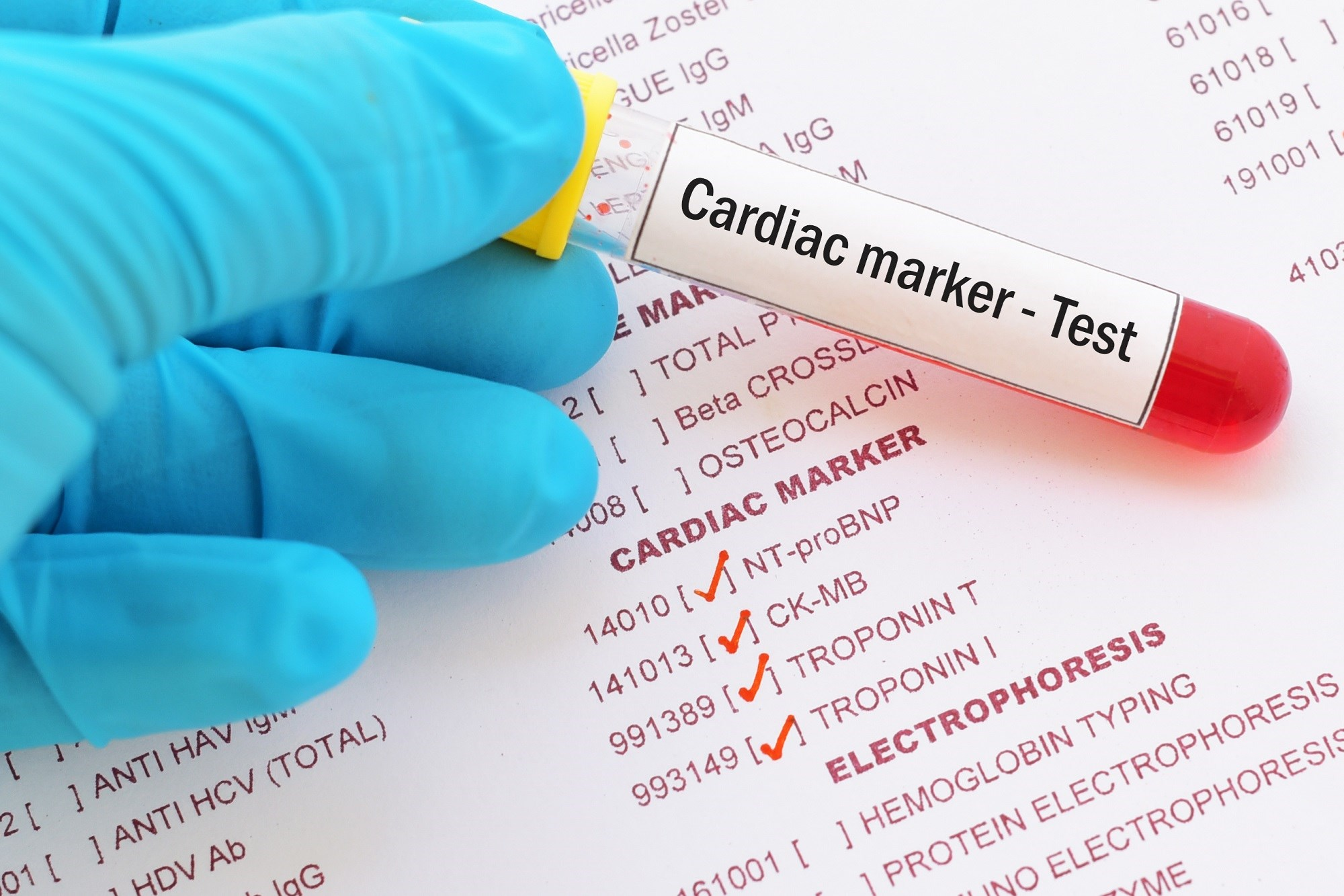 Natriuretic peptides and high-sensitive troponin may be useful for cardiac risk stratification in acute syncope.