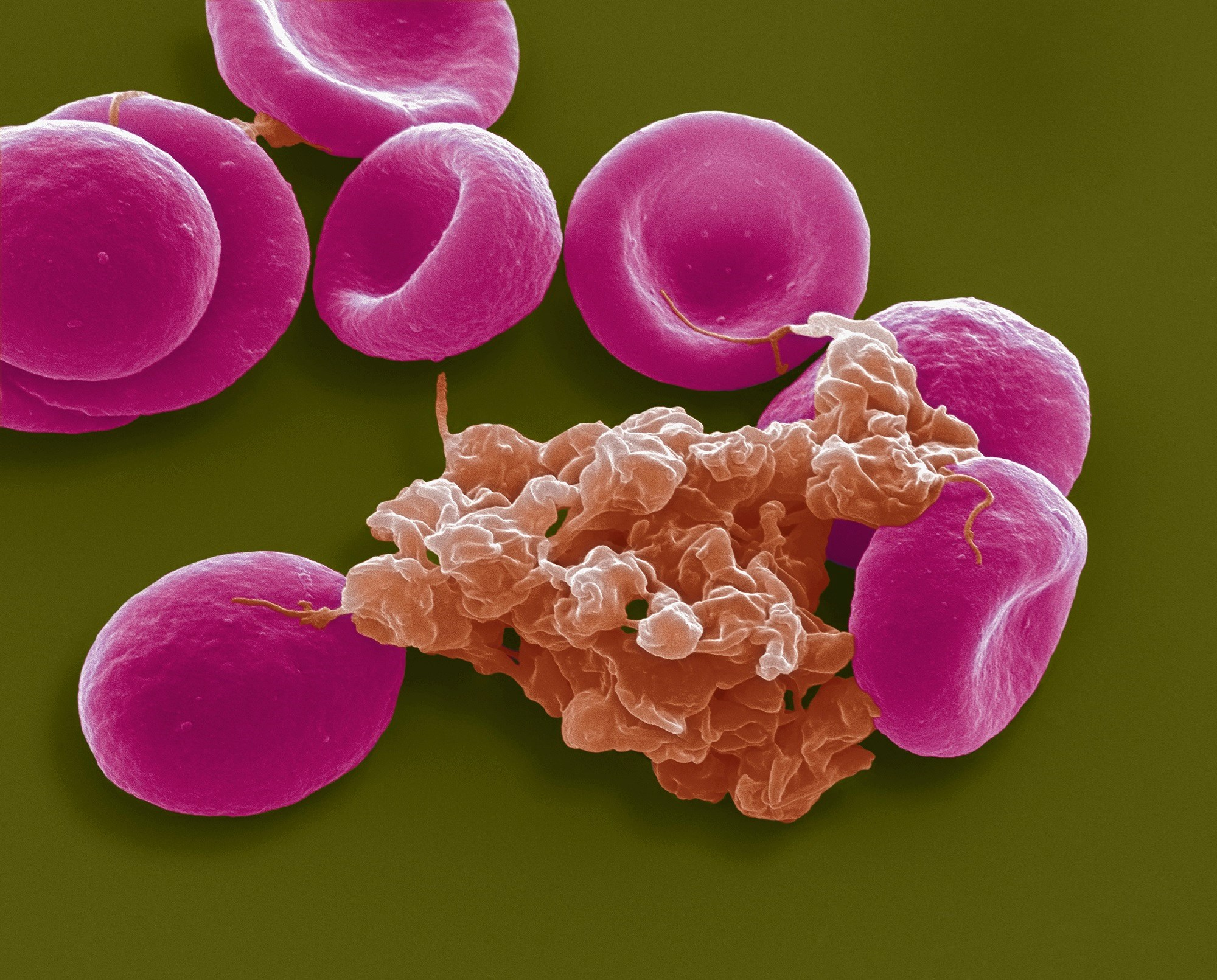 Baseline Thrombocytopenia Associated With Mortality Risk in VTE