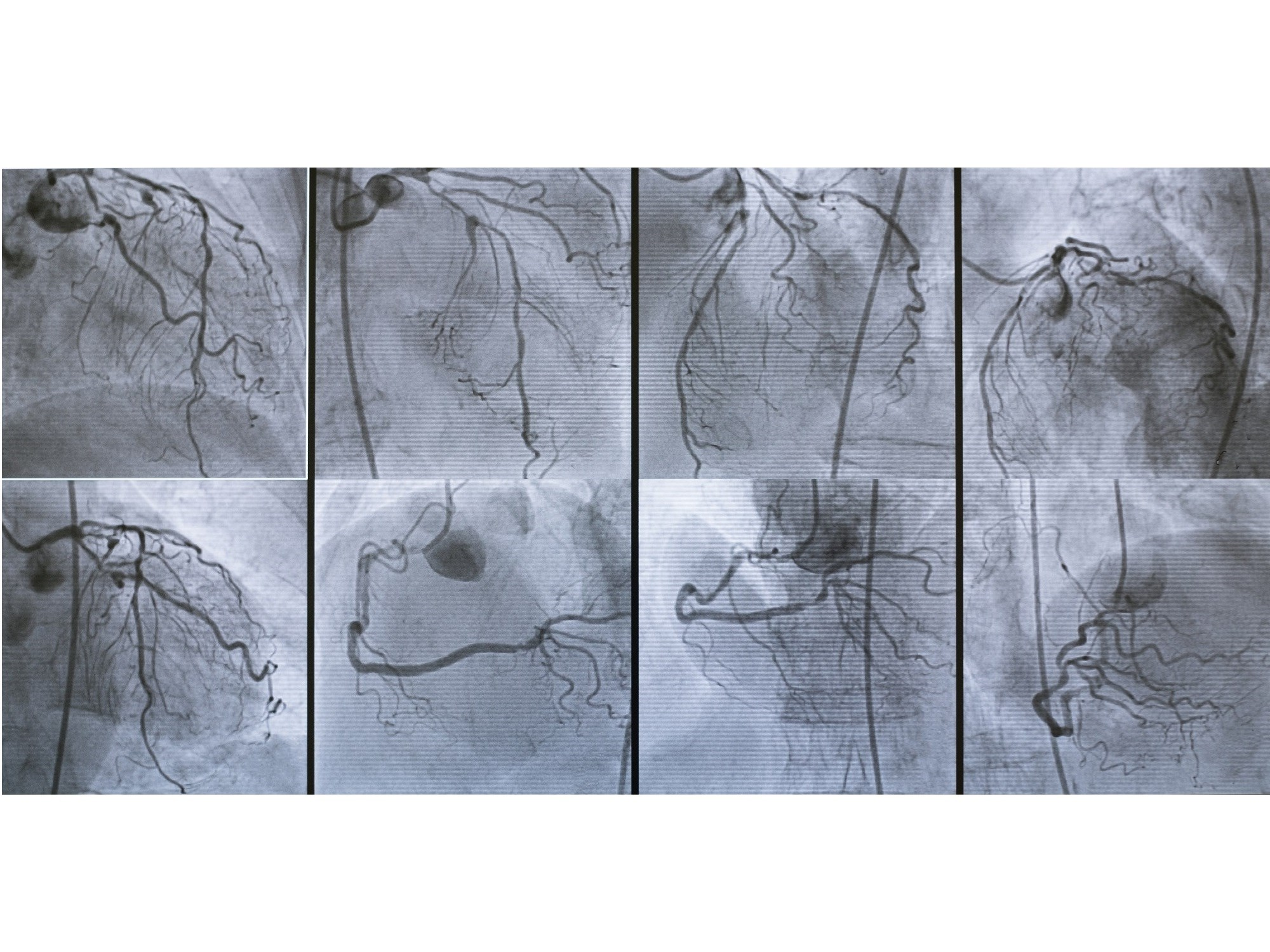 Single-stage complete coronary revascularization appears to be superior to culprit-only lesion intervention in multivessel disease ACS.