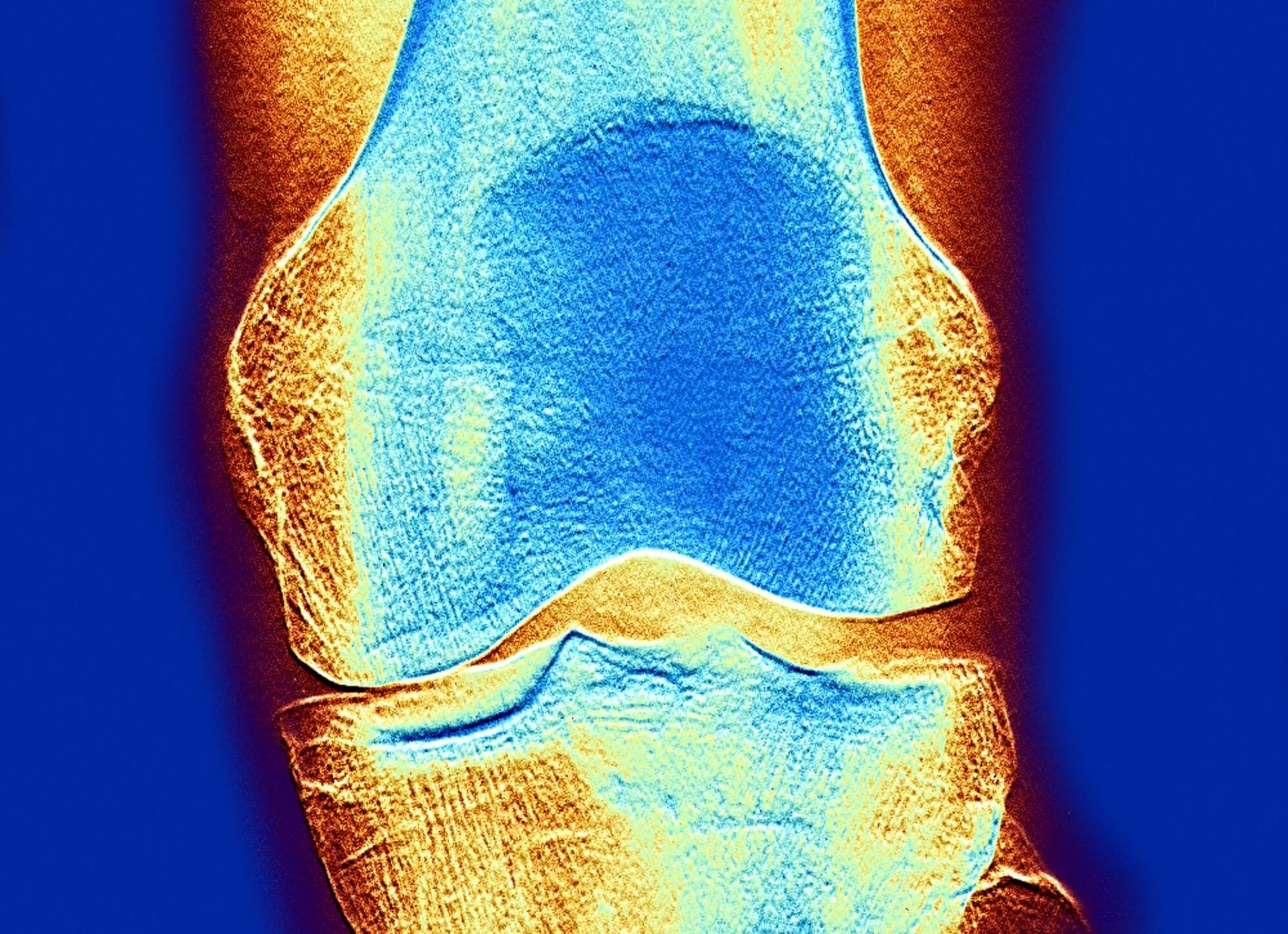 Tibia Lead Levels Linked to Risk of Resistant-Hypertension