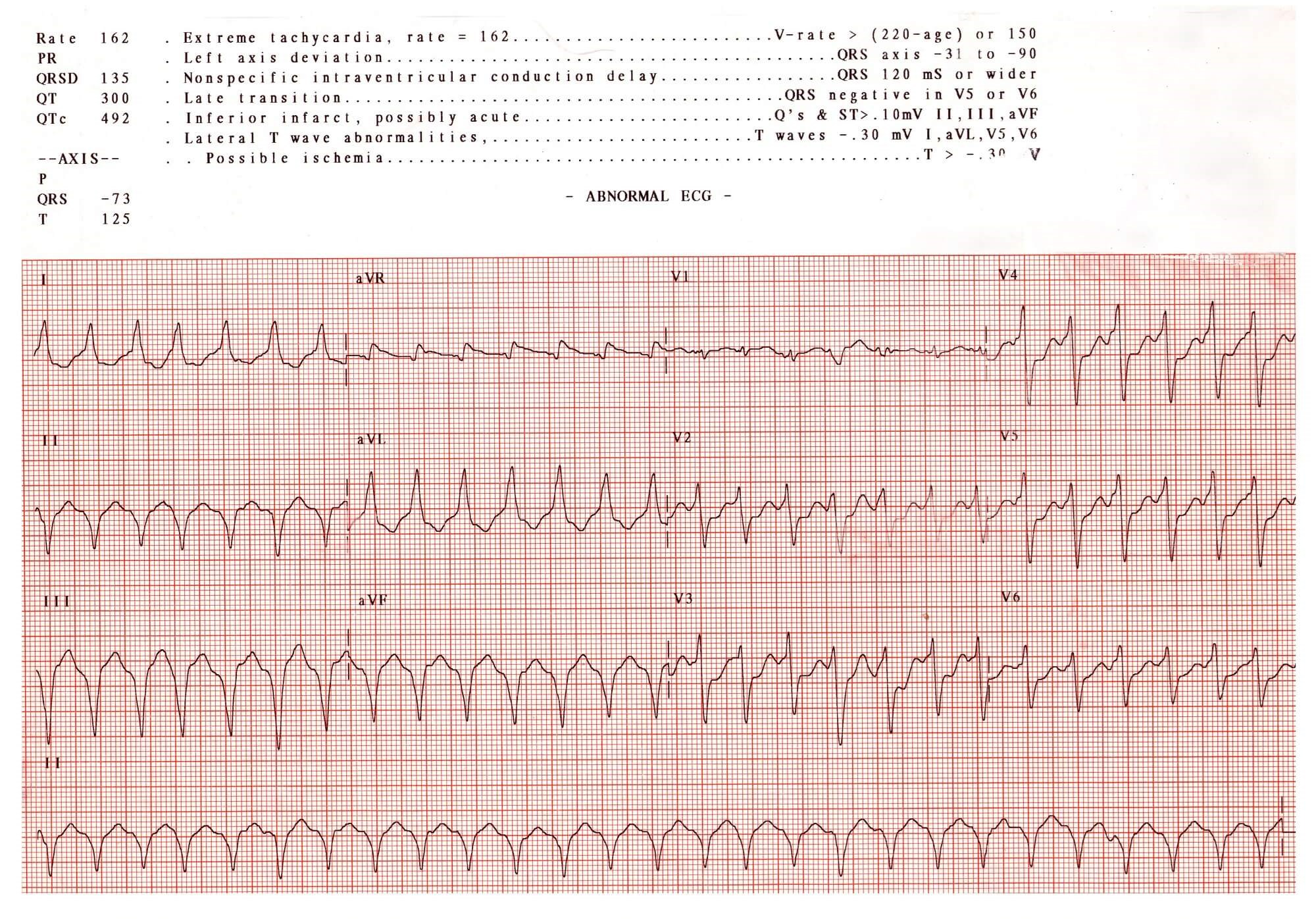 Greater Patient Delays for Women With STEMI Compared With Men