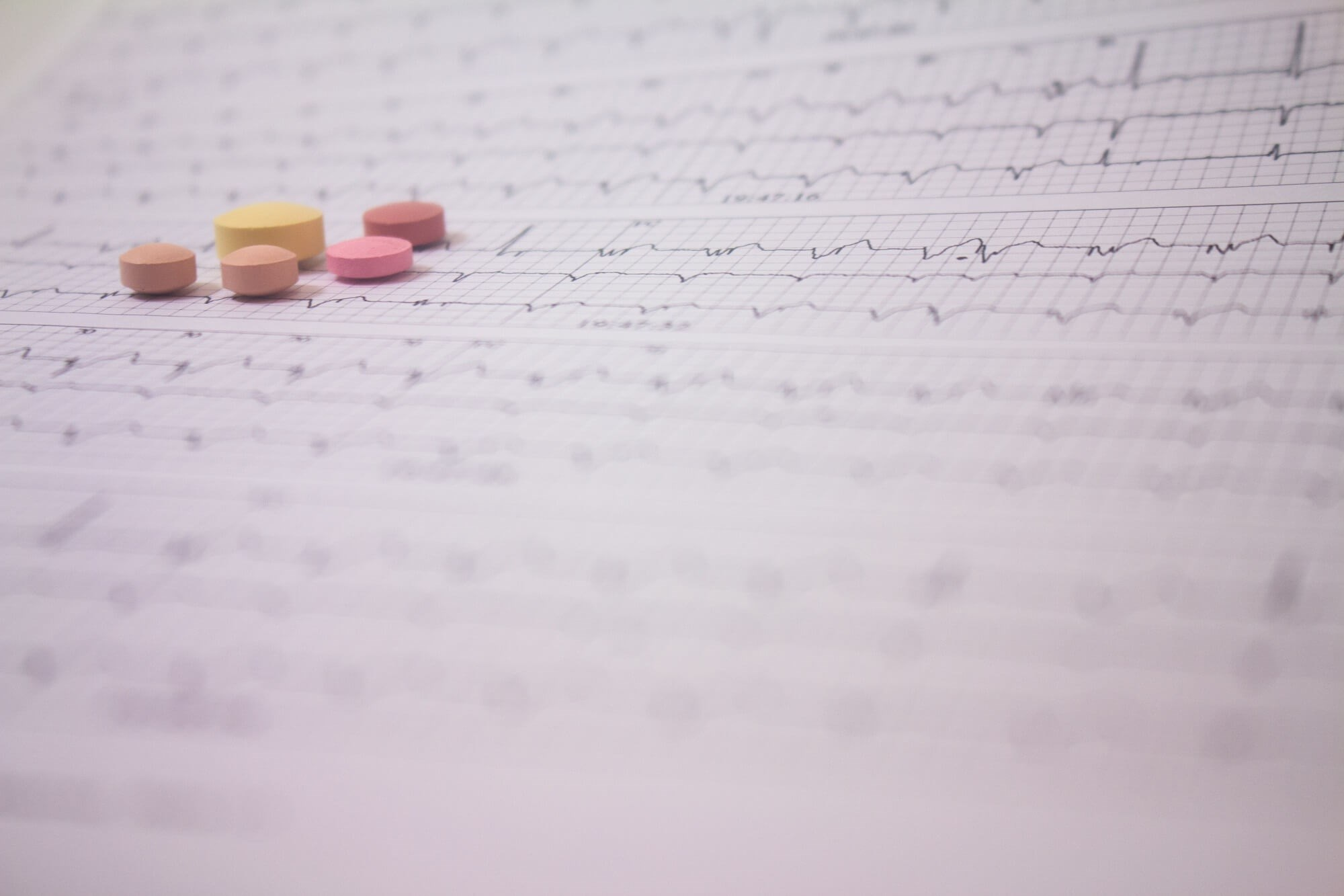Opioid Use Linked to Increased Atrial Fibrillation Risk
