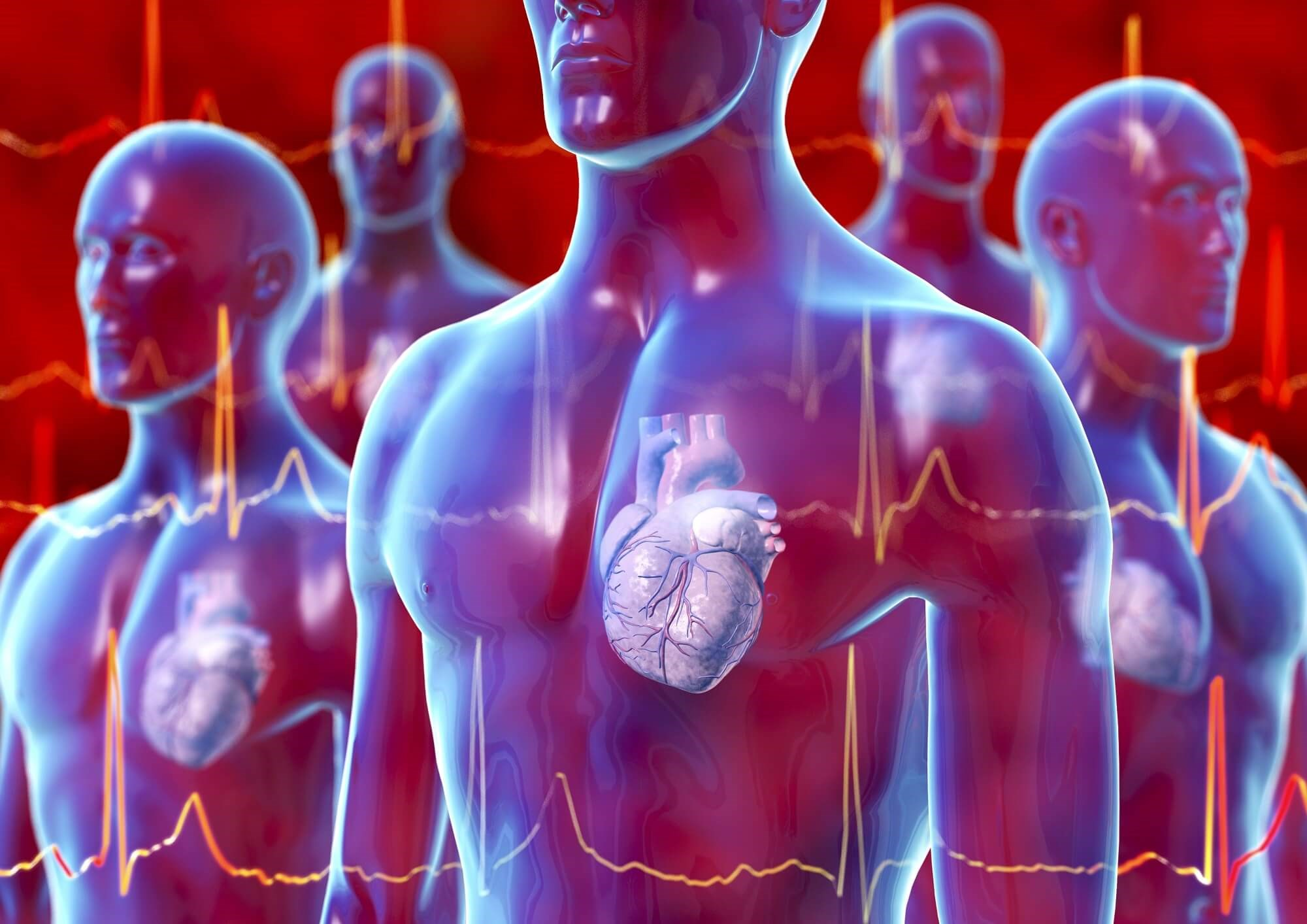 Rivaroxaban Has Positive Risk-Benefit Profile for Non-Valvular Atrial Fibrillation