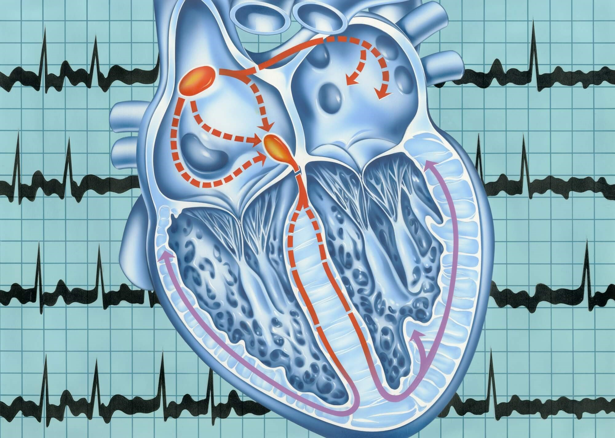 Atrial Fibrillation Risk Increased for Antidepressant Users Prior to Treatment Initiation