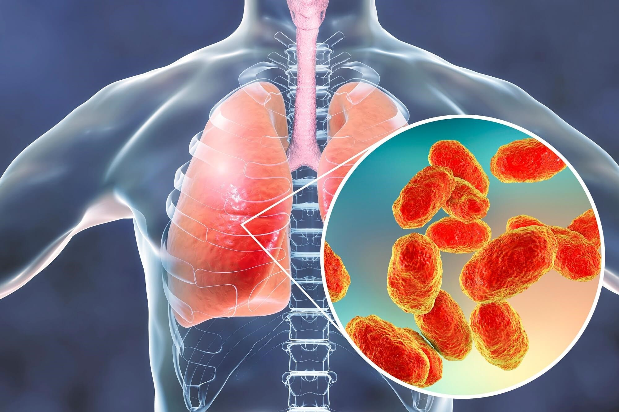 82% of 1531 patients in whom a major cardiovascular event developed had a diagnosis of bacterial pneumonia.