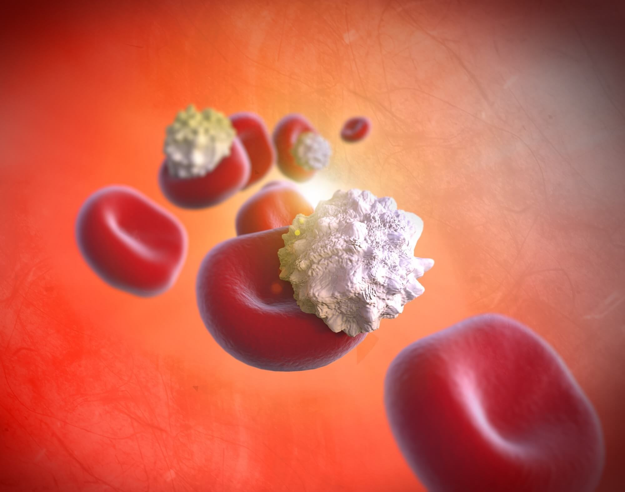 Alirocumab Well Tolerated and Effective in Patients With Statin Intolerance
