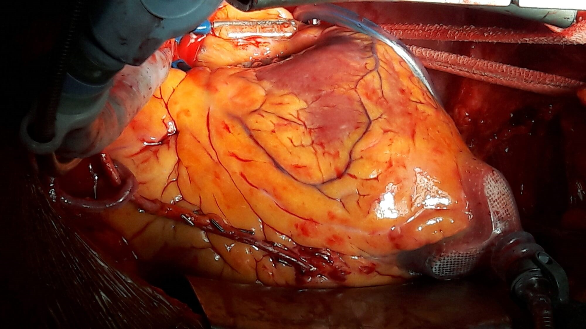 Coronary artery bypass grafting may be a superior revascularization strategy in patients with diabetes and multivessel disease.