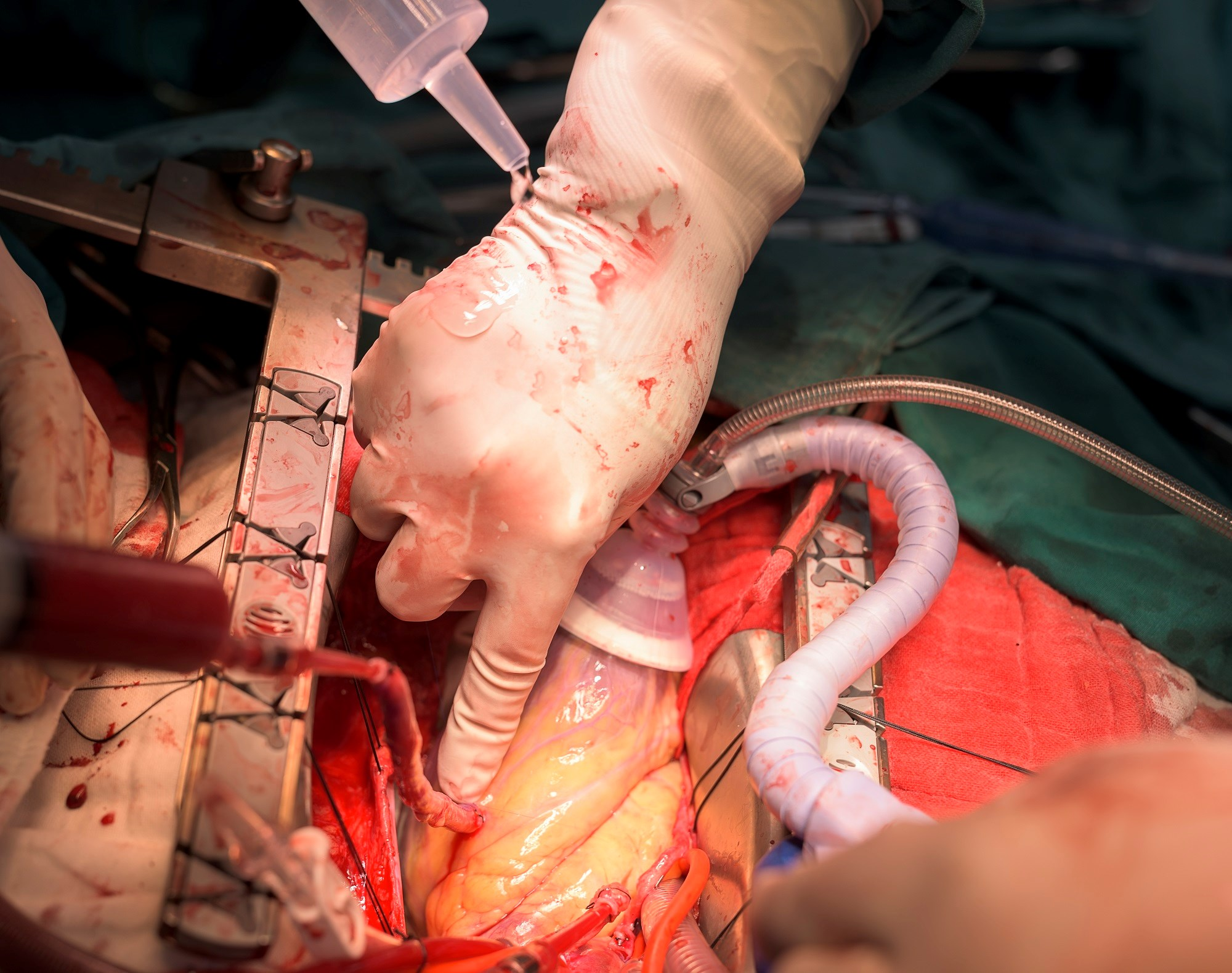 Chronic CCB Therapy Linked to Improved Outcomes After CABG Utilizing the Radial Artery
