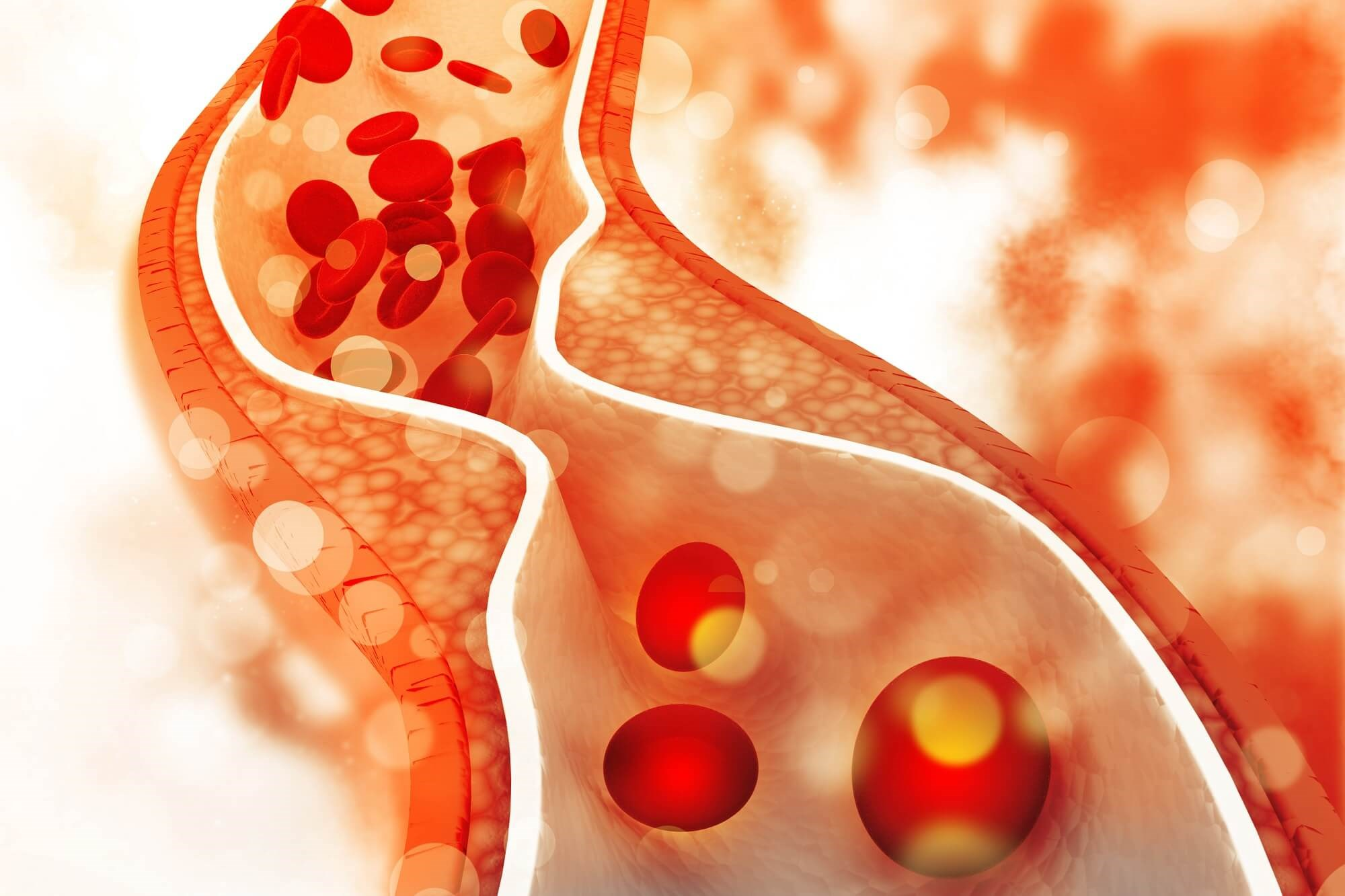 Total CV Event Reduction More Effectively Assesses Alirocumab Efficacy After ACS