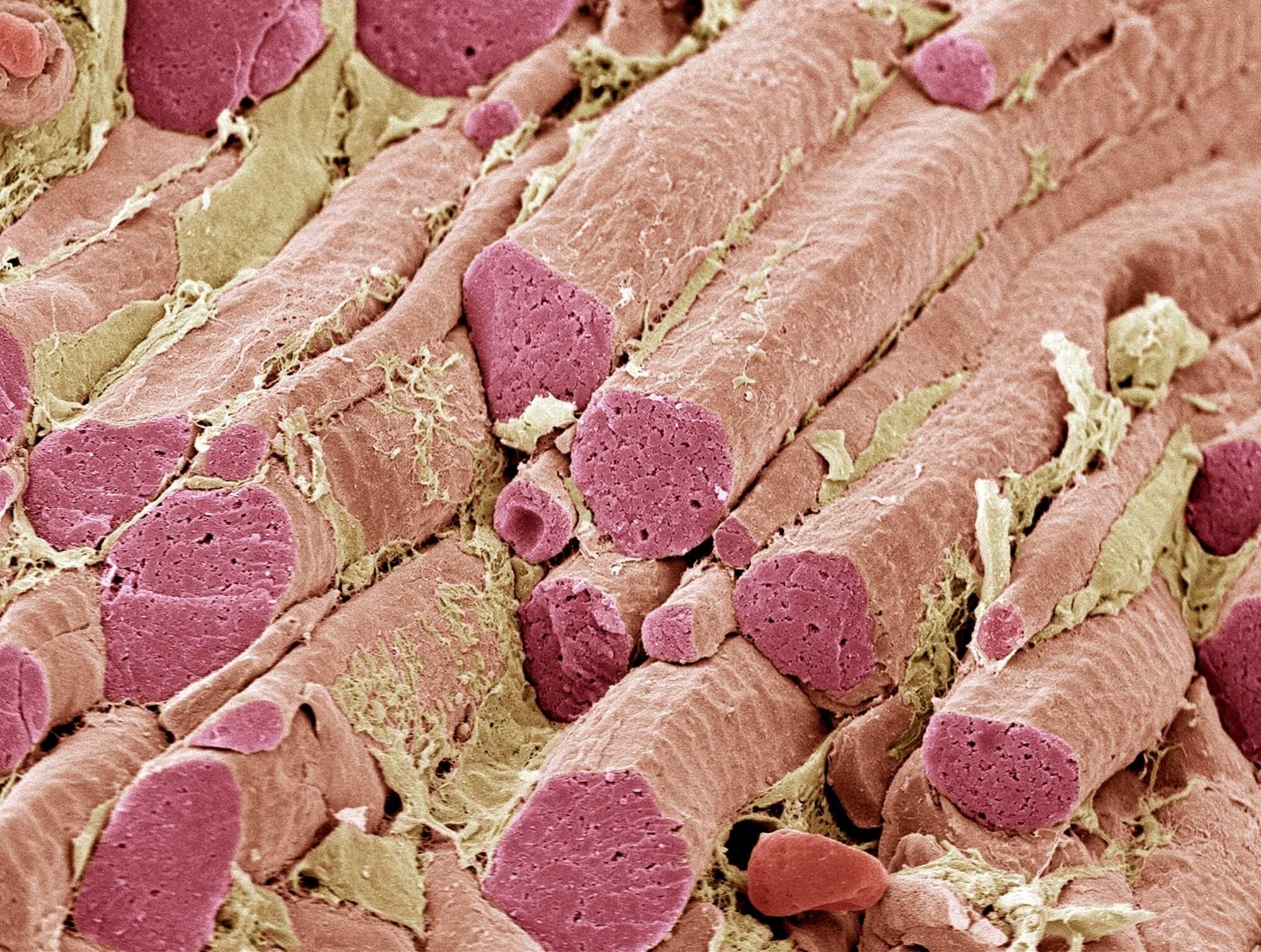 Onset of Musculoskeletal Adverse Events Varies Between Statins