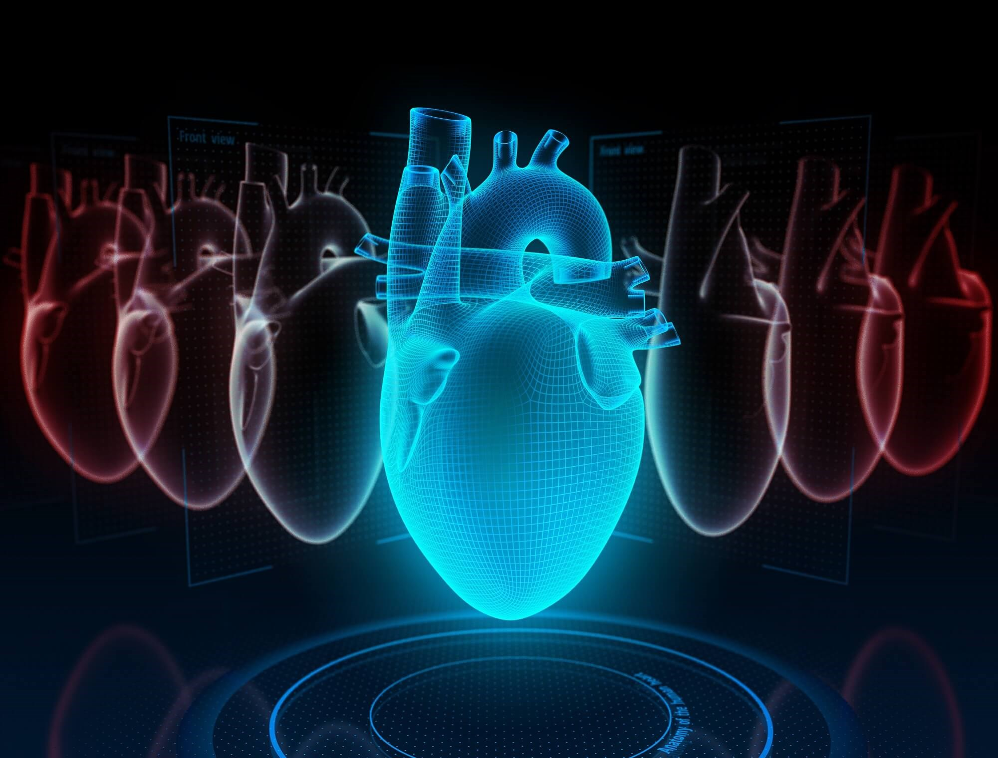 ADT users had a multivariable adjusted hazard ratio of 1.72 for heart failure compared to nonusers.
