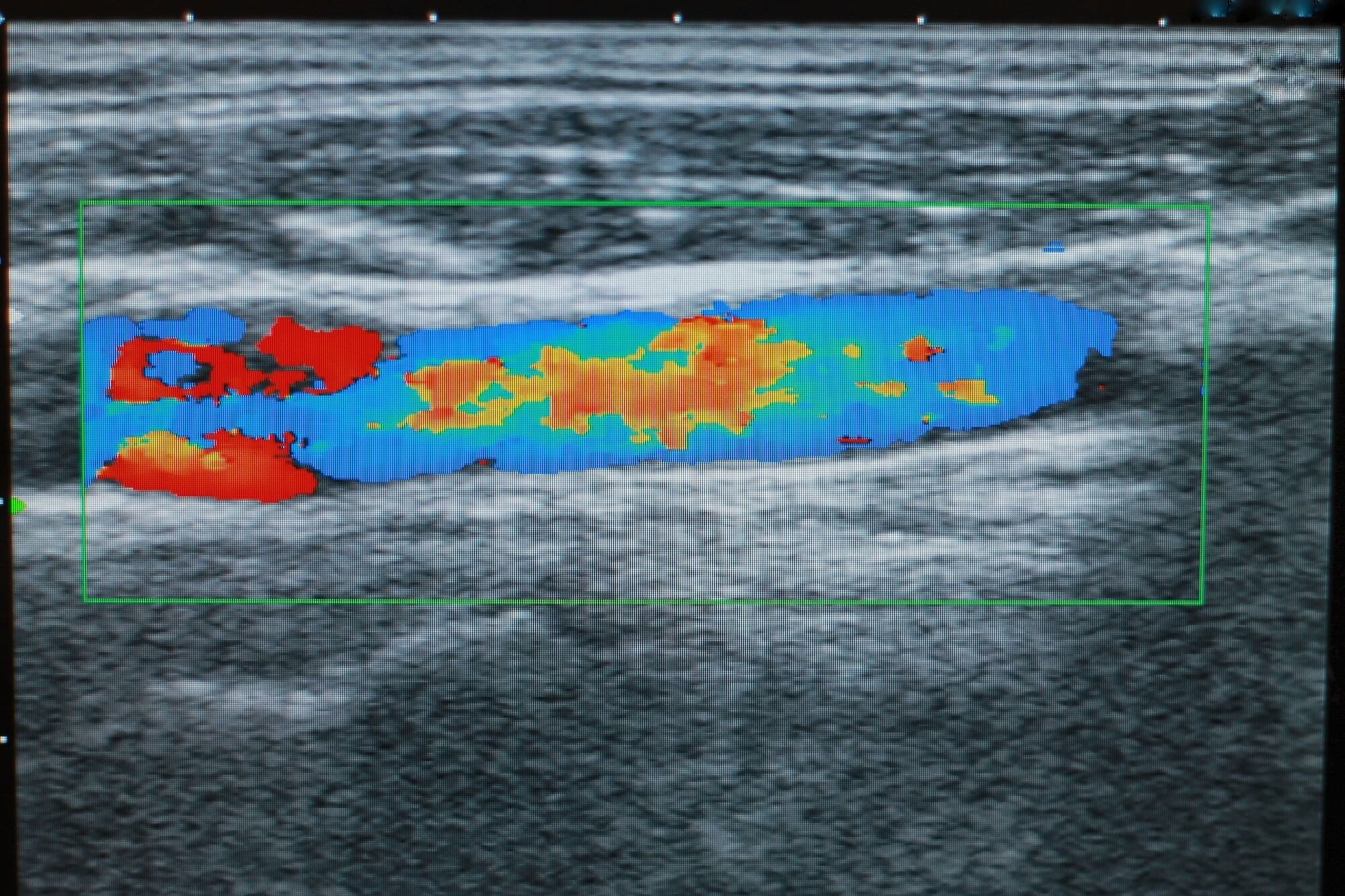 Ultrasound-Based Visualization of Silent Atherosclerosis May Improve Medication Adherence