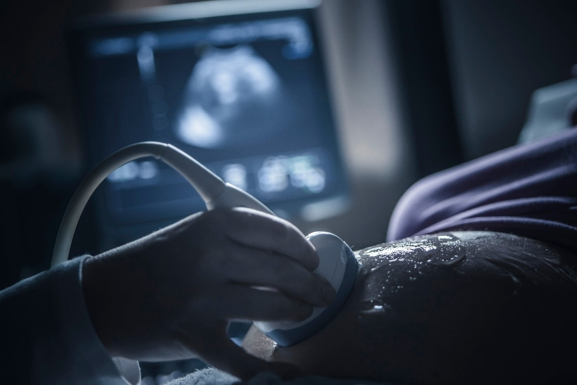 Pregnancy Loss Associated With Increased CHD and Heart Failure Risk