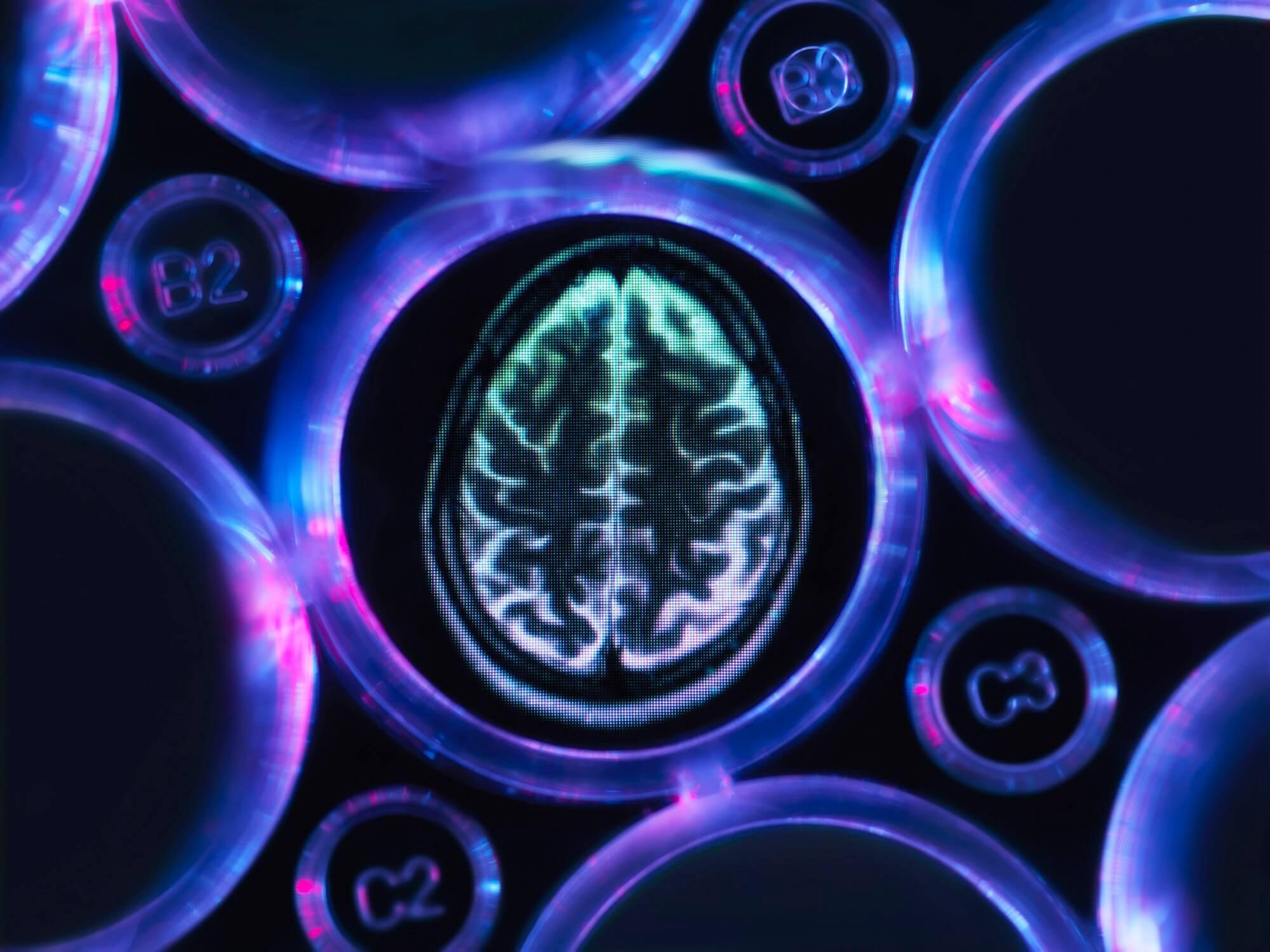 Cognitive Decline Similar After Heart Surgery, Cardiac Catheterization