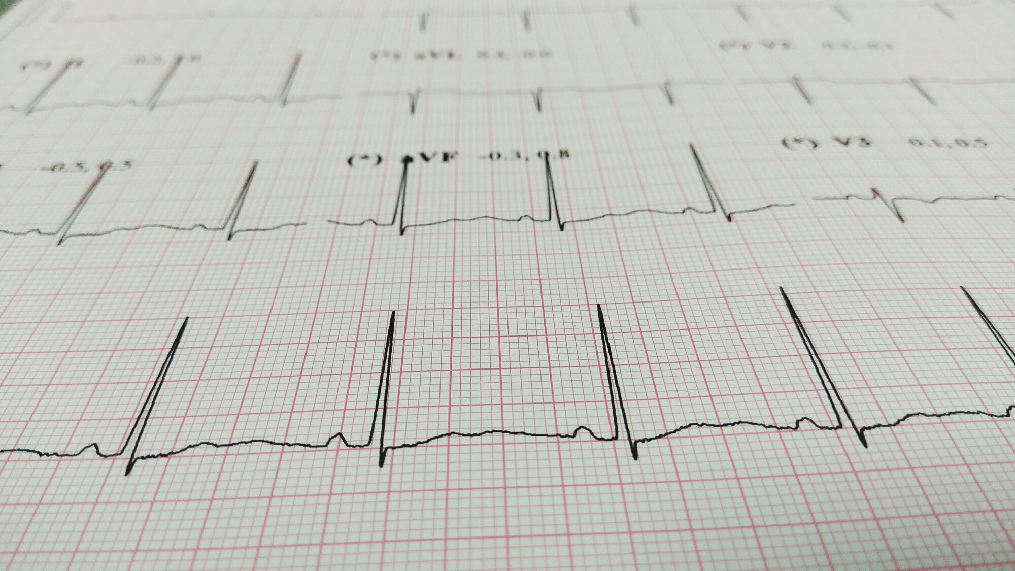 Artificial Intelligence Can Use Routine ECGs to Identify Heart Disease