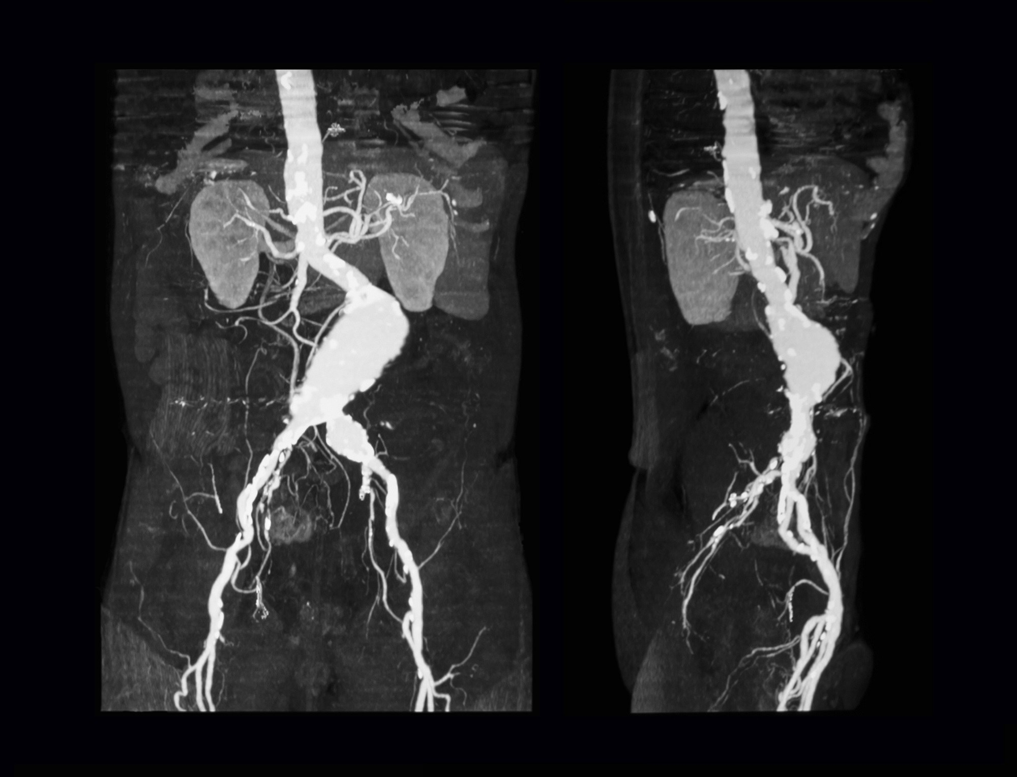 FDA: Fluoroquinolones Linked With Aortic Dissections, Aneurysms