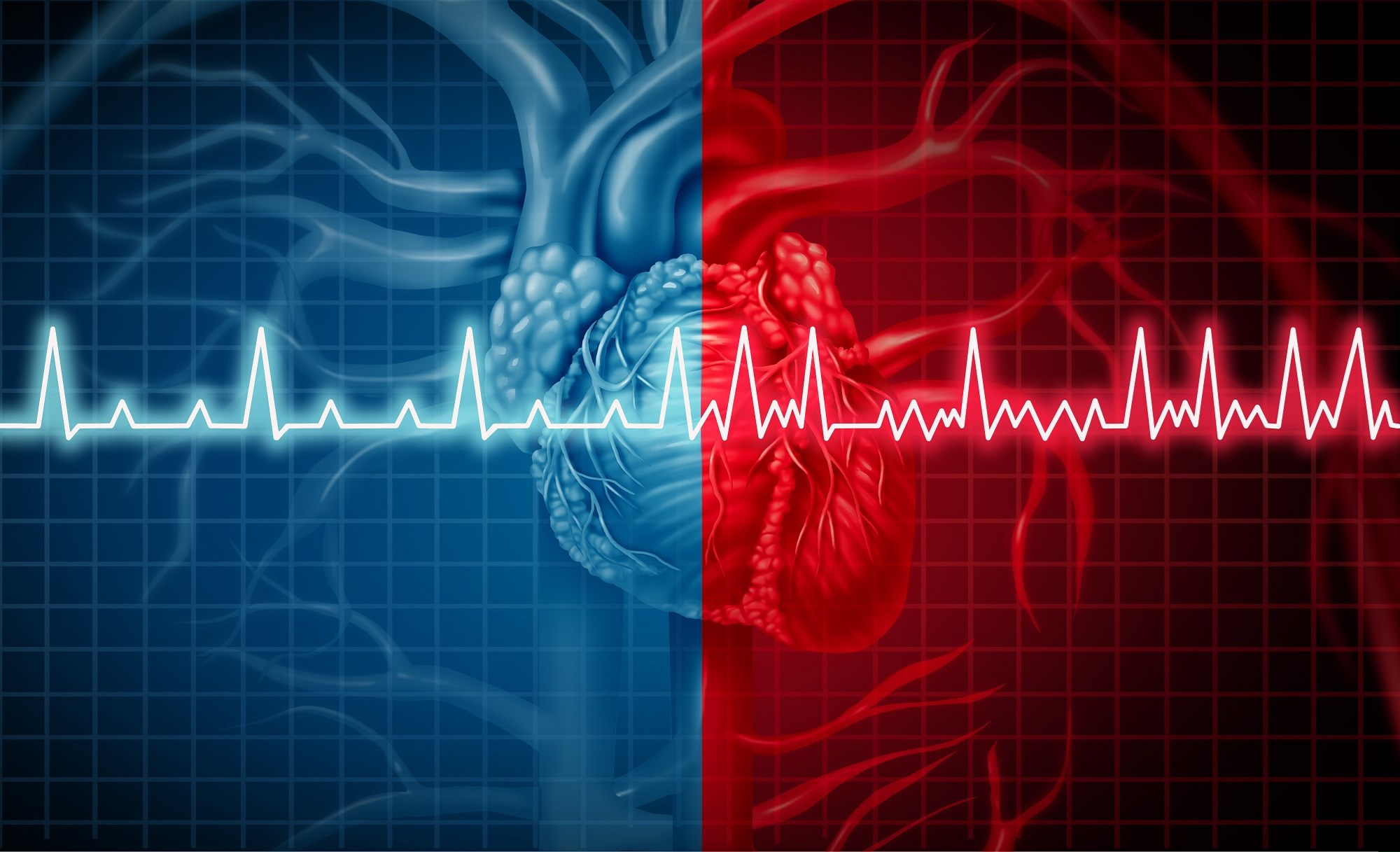 The risk for atrial fibrillation is increased among antidepressant users, particularly before treatment initiation.