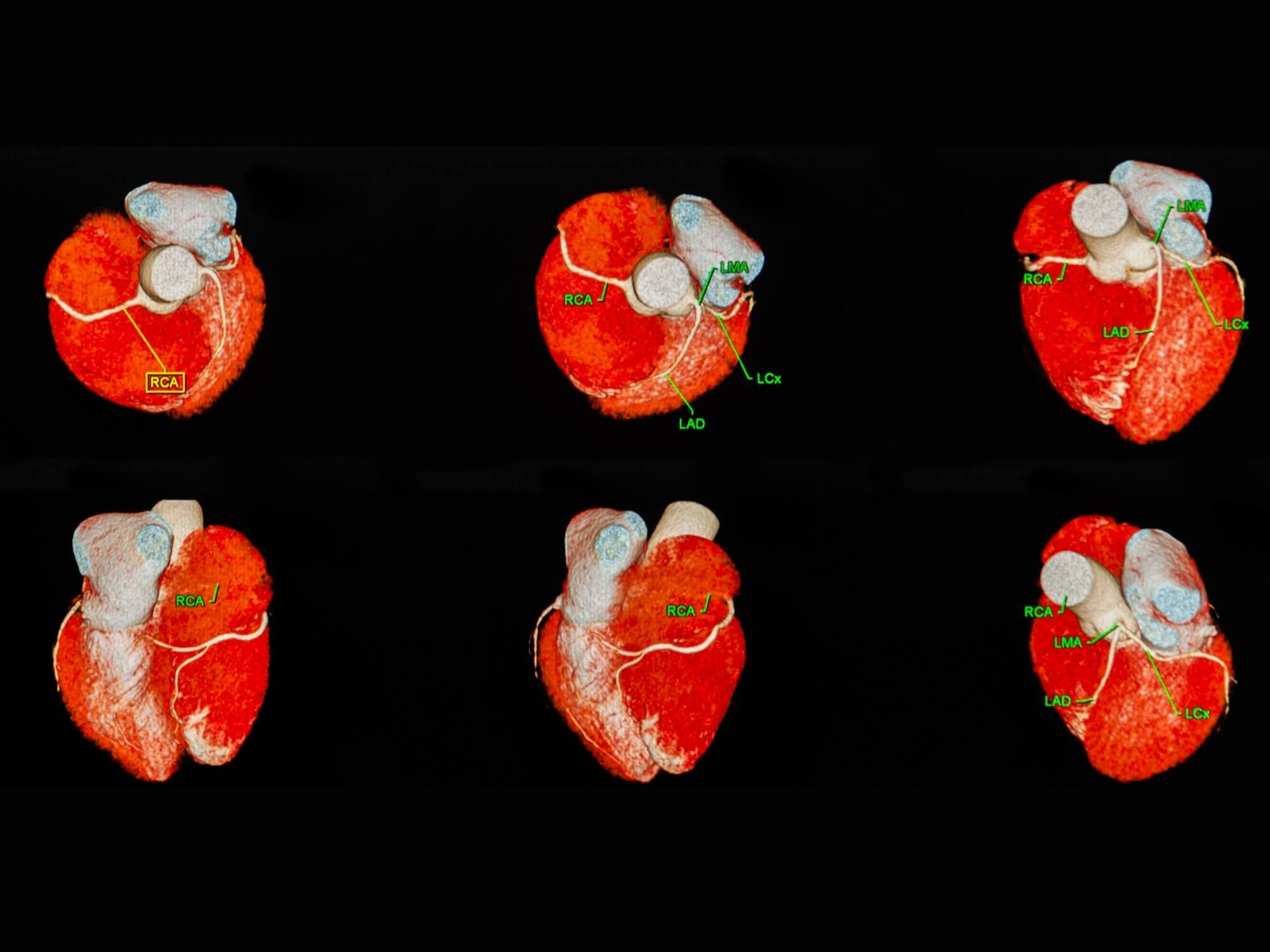 Can You Safely Shift Lower Risk Patients to CCTA When Evaluating Suspected Stable CAD?