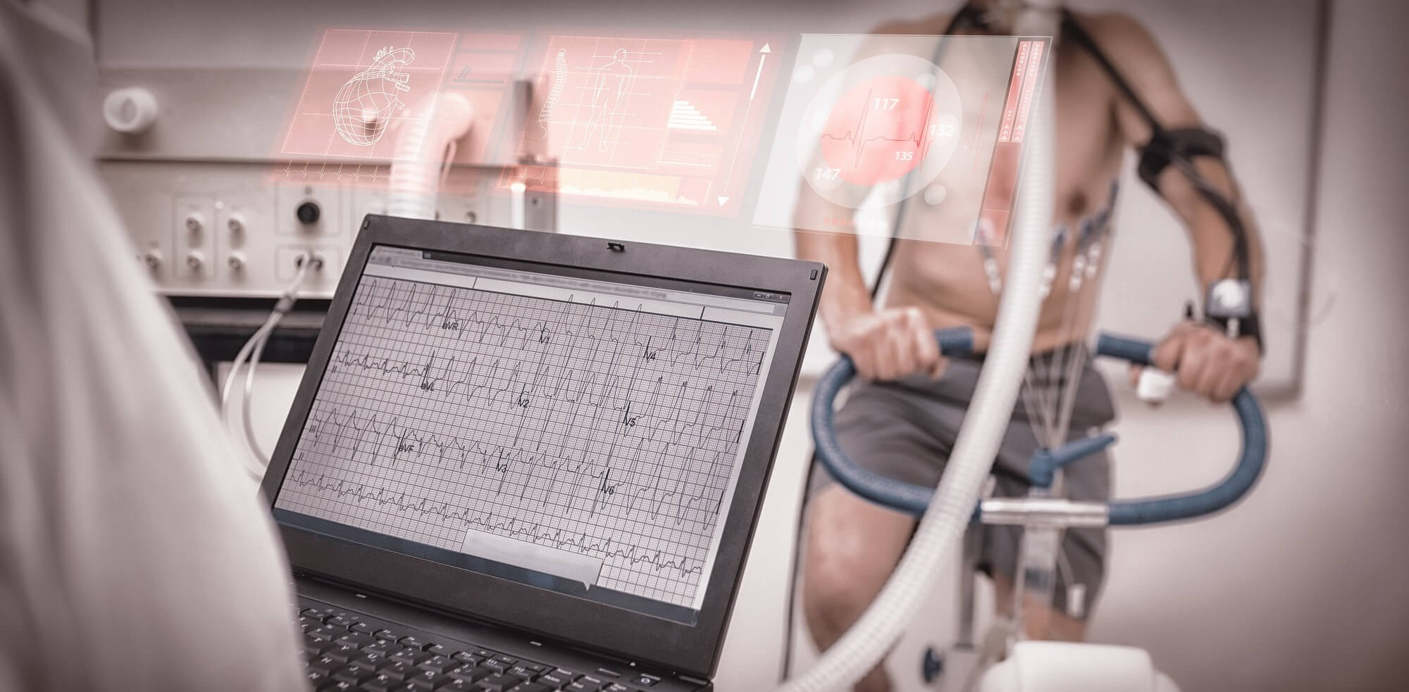 Combinations of VO2 and change in CI during follow-up visits are valuable prognosis markers in low-risk patients with PAH.