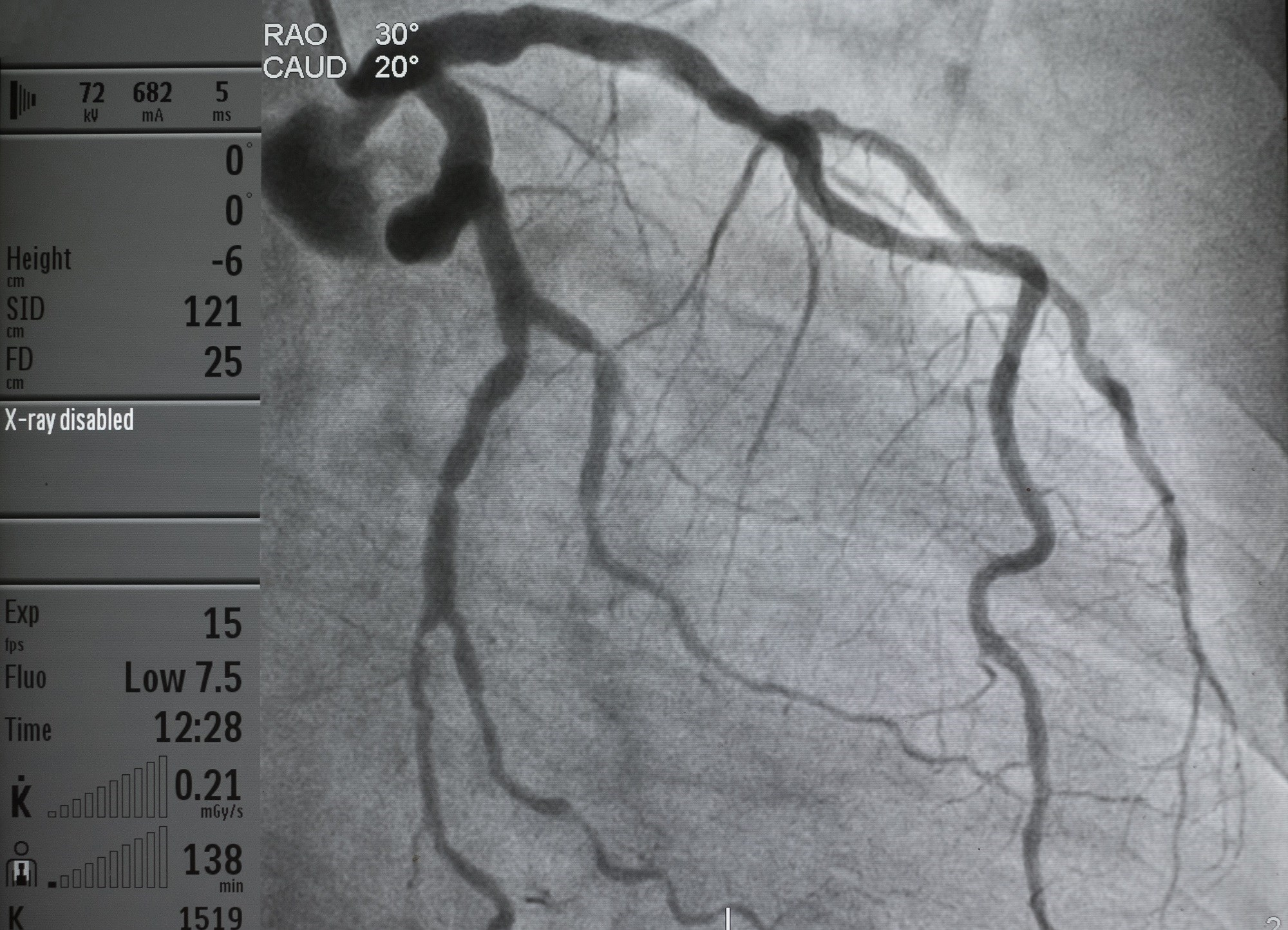 After nicardipine treatment, all vessels showed TIMI 3 flow and TFC <28.
