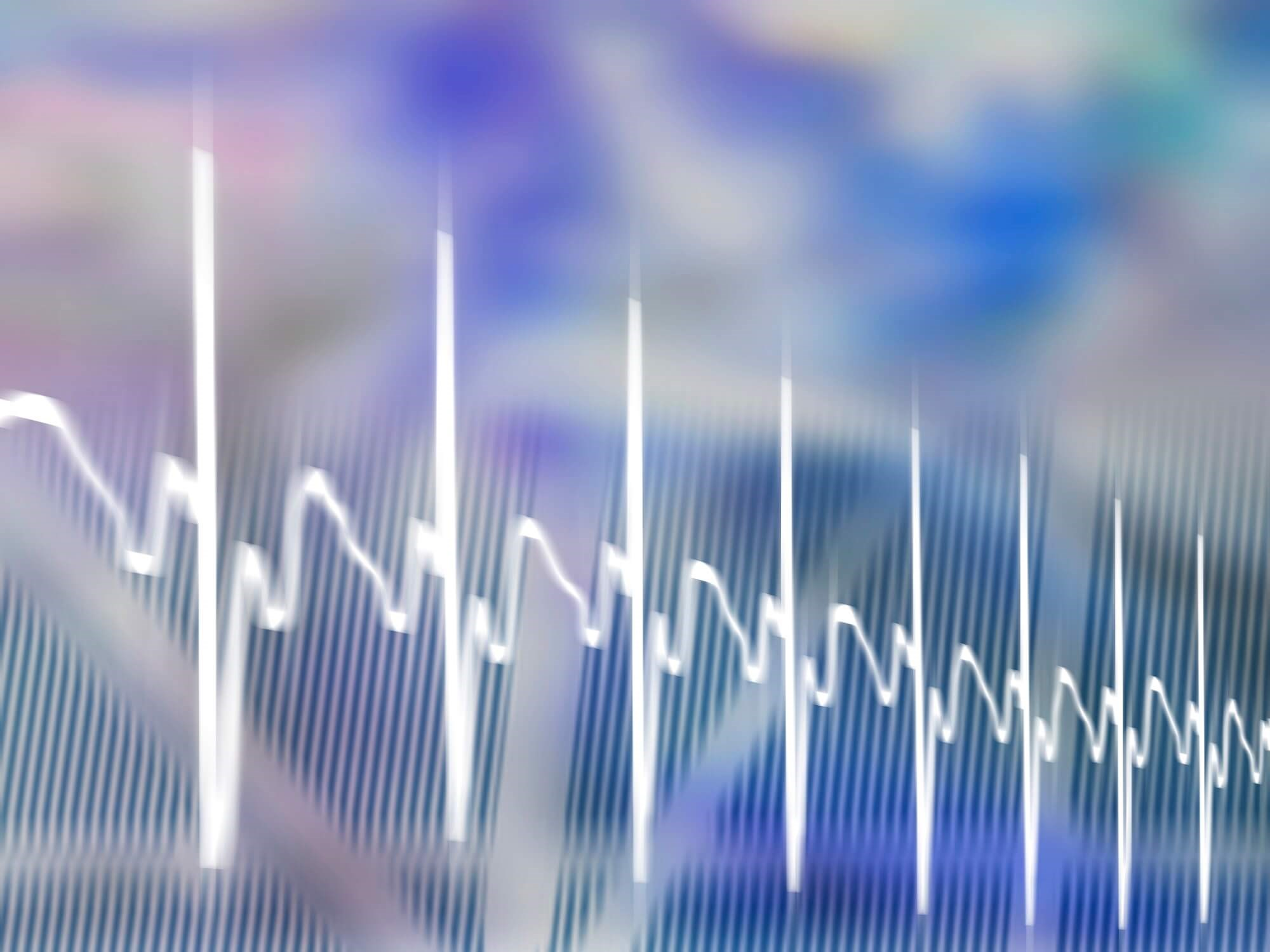 Artificial Intelligence-Enabled ECG May Screen for Asymptomatic LV Dysfunction