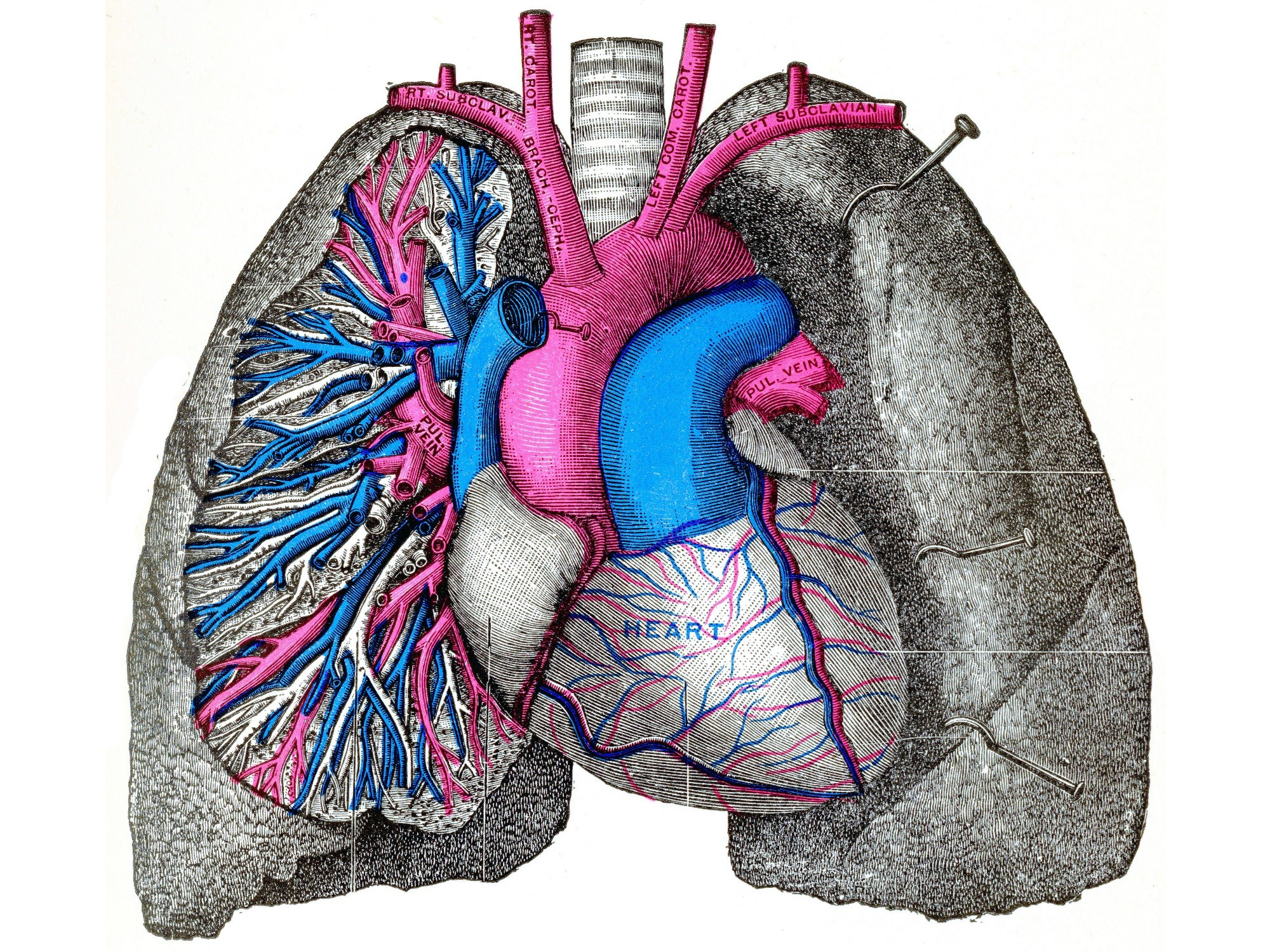 Researchers Identify Golden Ratio Between Pulmonary Pressure Components in PAH
