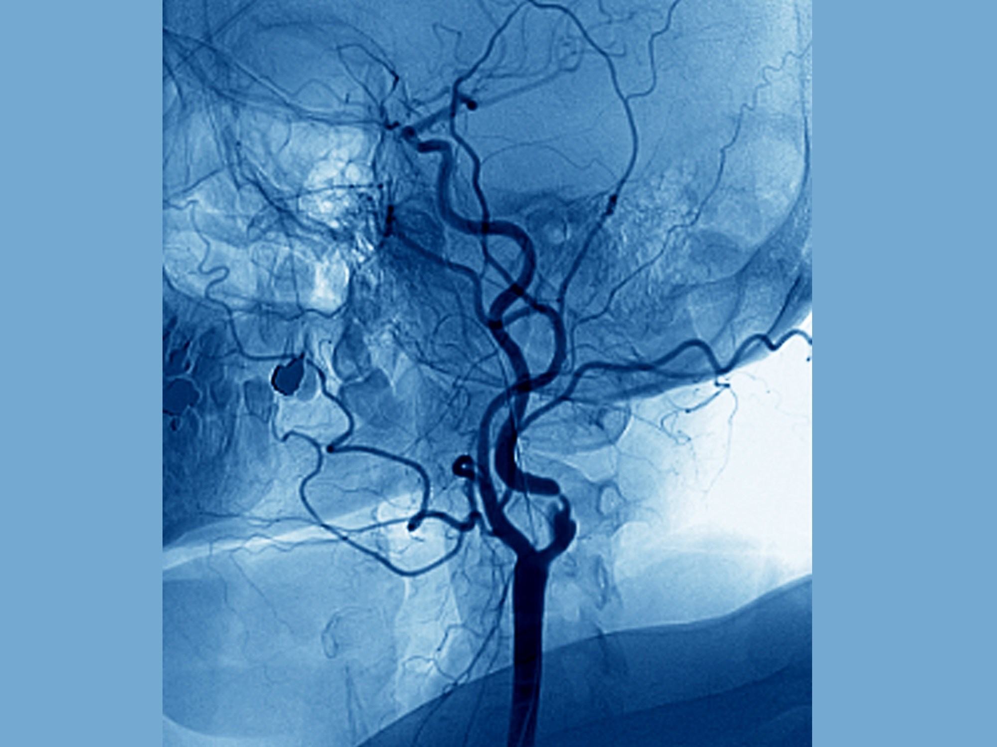 Researchers gauged incidence of new or worsened stroke, intracranial hemorrhage, and death as main complications of patients with moderate to severe strokes who underwent urgent carotid intervention.