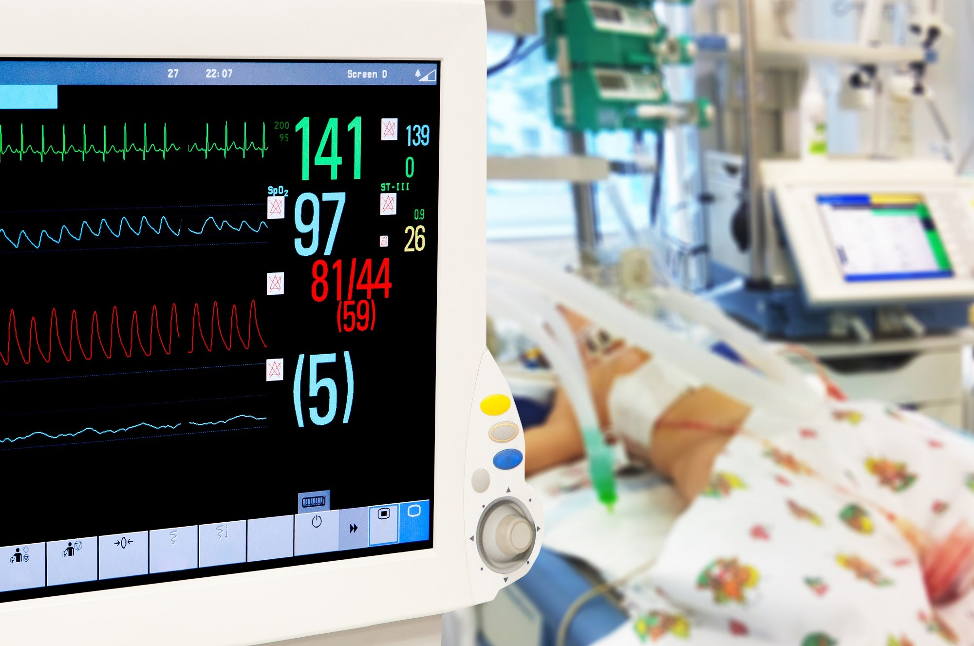 Response to Inhaled NO in Neonates With Persistent Pulmonary Hypertension Varies