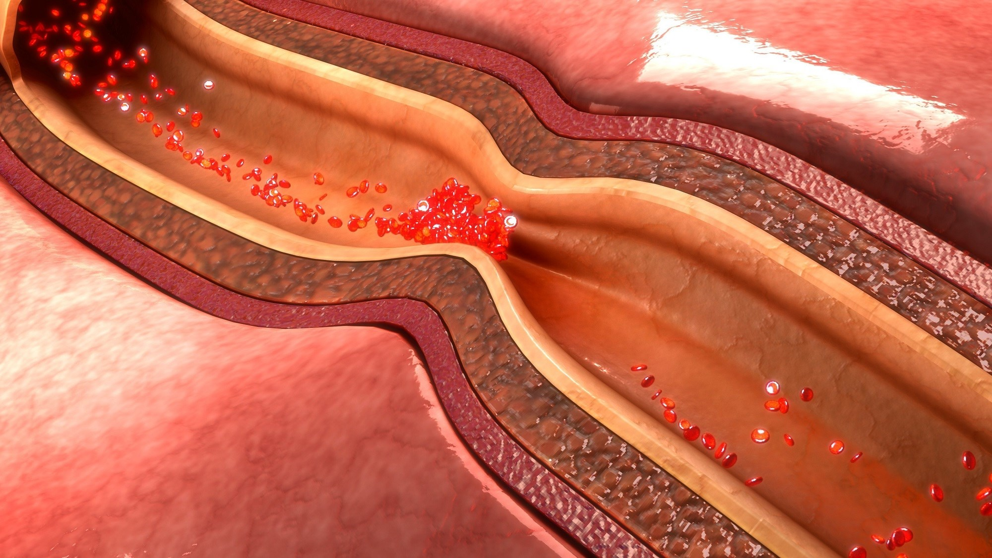 Impaired Microvascular Function Predictive of Adverse CV Outcomes in Women