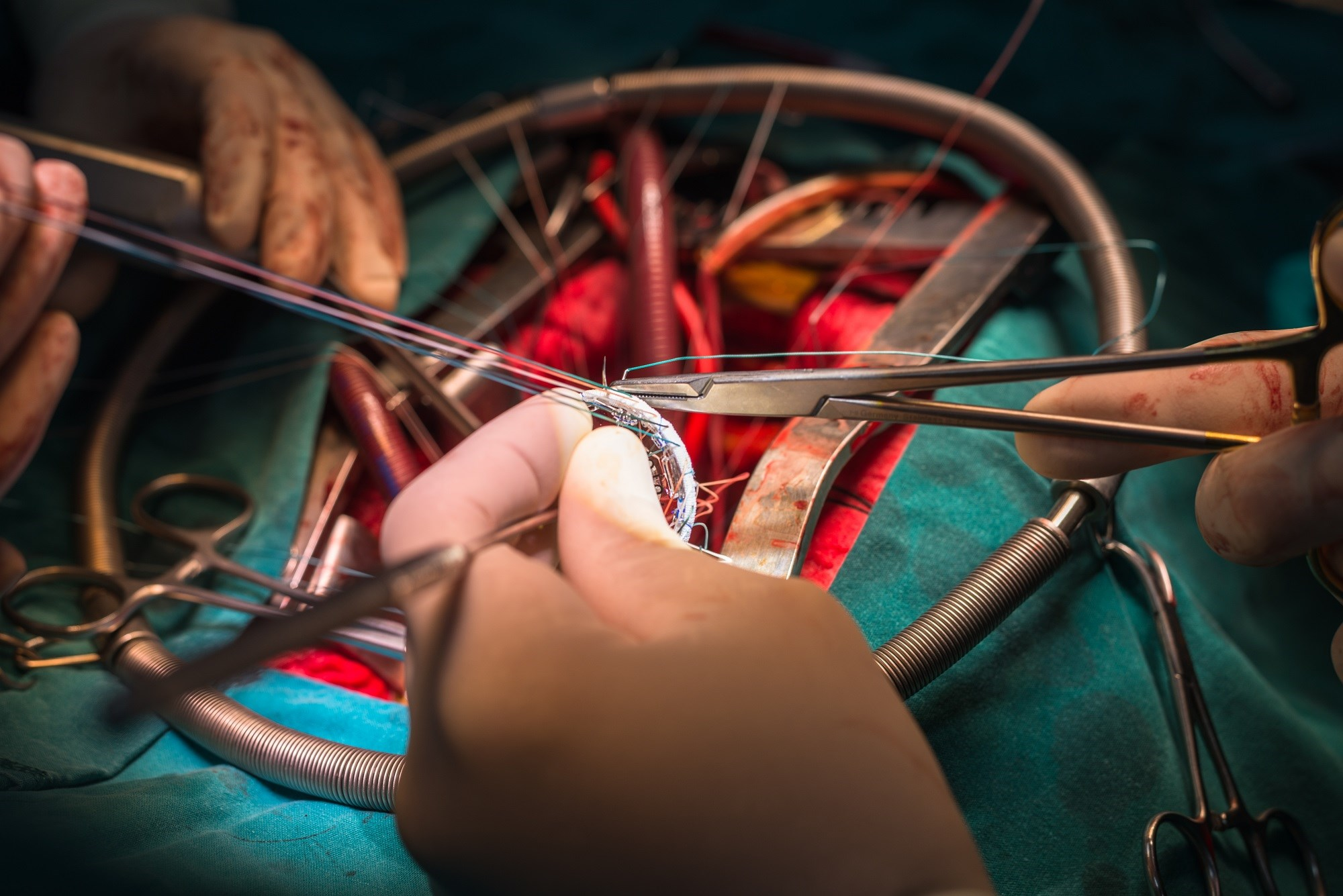 Safety of Immediate Sildenafil Administration After Mitral Valve Surgery