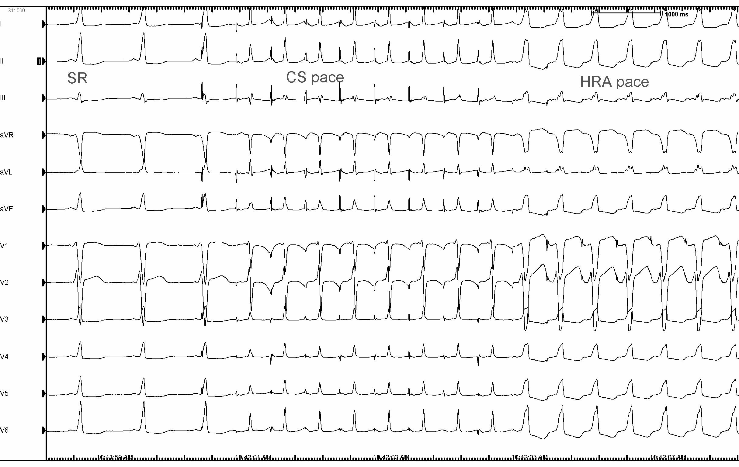 syndrome wolff parkinson white pdf